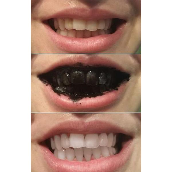 Teeth Whitening 100% Organic - Sort Tandpasta Med Aktivt Kul